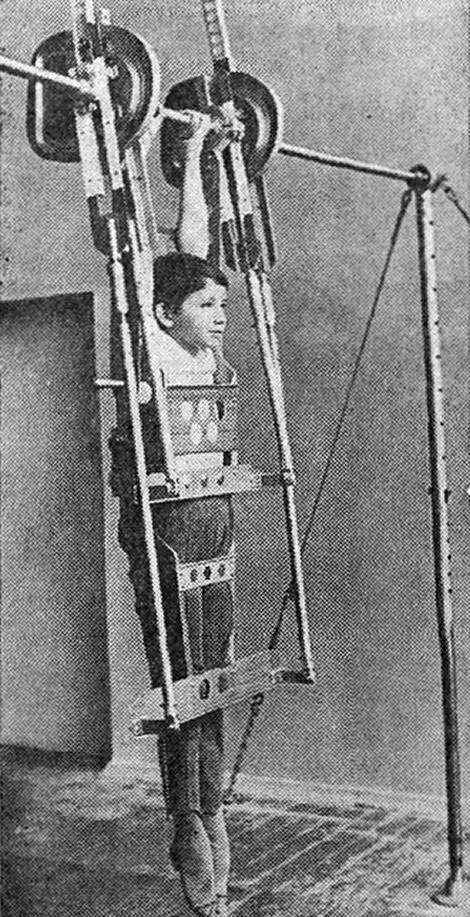 Рис. 2. Устройство с гимнастом подготовленное к работе